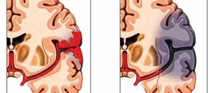 السكتة الدماغية, أنواعها و أعراضها